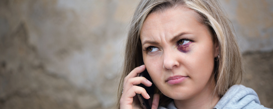 A young woman with a black eye is calling someone on her mobile phone.